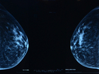 New breast density law saving women's lives
