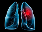 UC study identifies gene linked to lung cancer