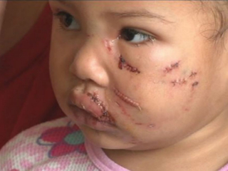 PD: Family lied about dog attack on 2-yr-old