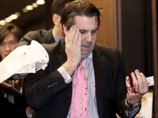 Ambassador says attacker was trying to kill him