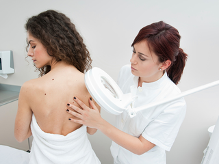 4 things to know about melanoma