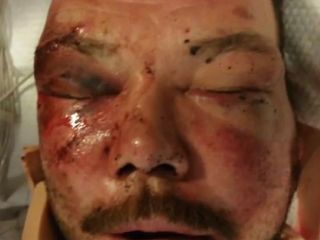 Man's mysterious injuries still baffle police