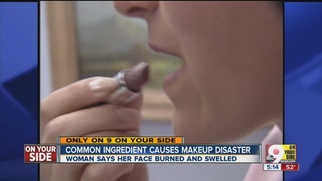 Makeup wipe causes burning, swelling