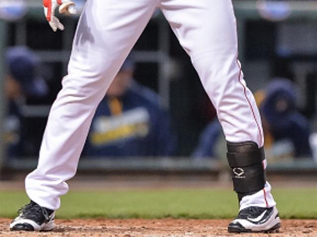 Wcpo_reds_ankle_brace_leg_injury_injured_baseball_1462635787800_37771003_ver1.0_640_480