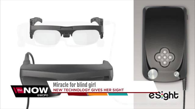Miracle for blind girl