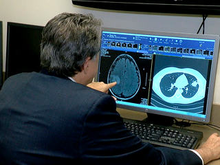 New tech gives hope to late-stage cancer patient