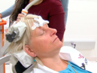 UC trial tests brain stimulation after stroke