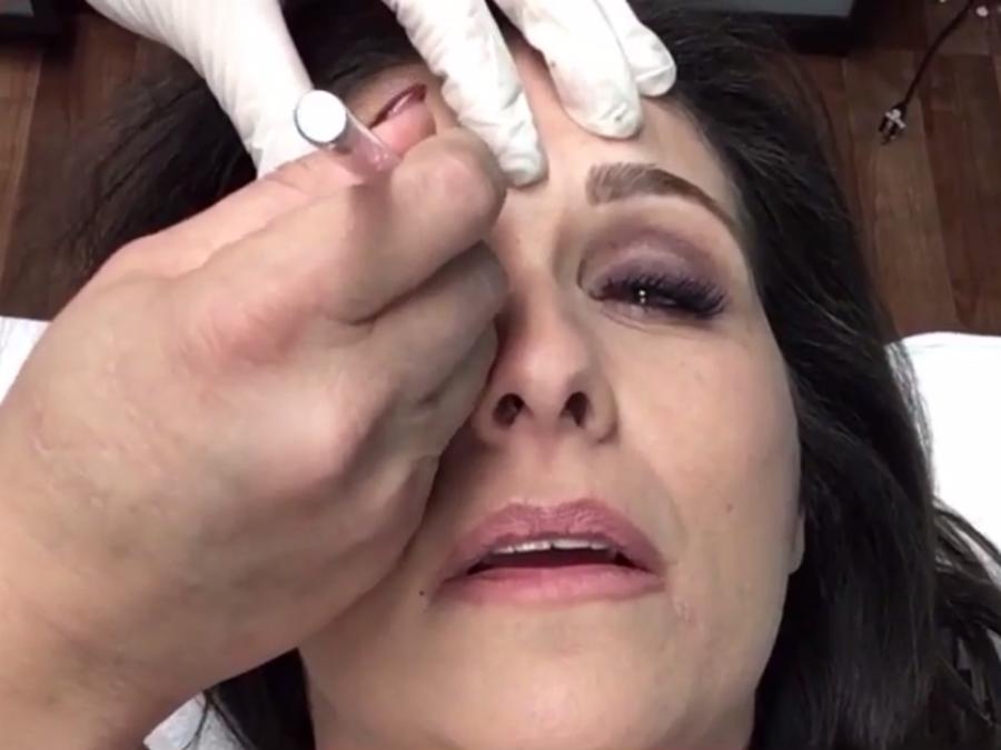 Wcpos Julie Oneill Tries Microblading Eyebrow Treatment Wcpo