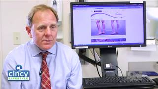 Learn about varicose veins with Dr. Patrick Muck